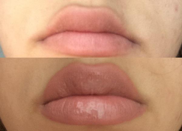 dudak dolgunlaştırıcı