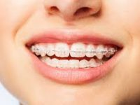 Şeffaf Diş Teli İle Estetik Görüntü